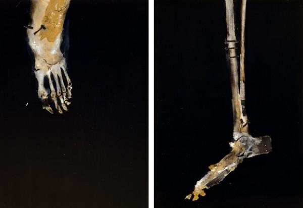 """""""Ganas de ser"""" y Caverna de pulmón"""" Serie Anatomías. 32,5 x 46 cm. Cajas de luz: 34,3 x 47,7 x 14 cm"""